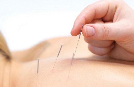 Akupunktur Kassner Hilden