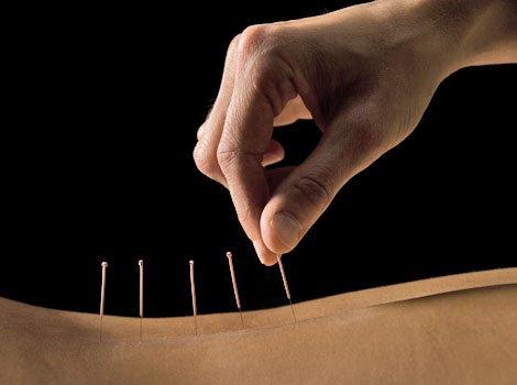 Akupunktur in Wuppertal-Vohwinkel